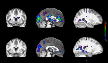 How Genetics Shape Our Addictions: Genes Predict the Brain's Reaction | Your thoughts? | via. @sciencedaily |