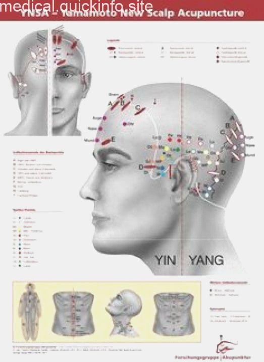 Yamamoto New Scalp Acupuncture Buscar Con Google Craniosacraltherapy Cranios Acupuncture Acupuncture Benefits Acupressure Treatment