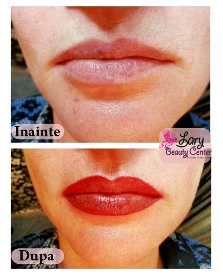 Pigmentare buze by Lary Beauty Center