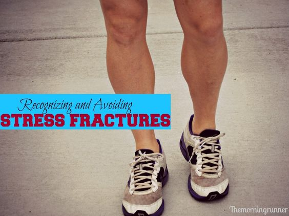 Recognizing and Avoiding Stress Fractures #themorningrunner #injury prevention #stressfractures