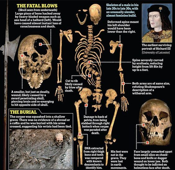 Richard III's skeleton, found under a Leicester car park, deconstructed | 2013