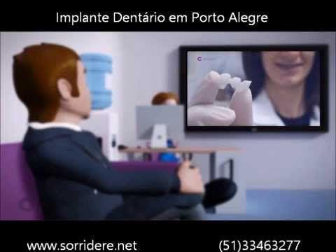 video explicativo sobre implantes dentários