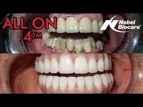 True Dental Care Health Dentistafit Dentalimplantscostpeople Dental Implants Cost Dental Implant Treatment Dental Implants