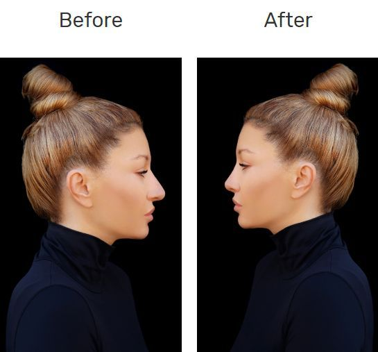 Rhinoplasty Surgery In Hyderabad Nonsurgical Nose Job Nose Plastic Surgery Nose Surgery