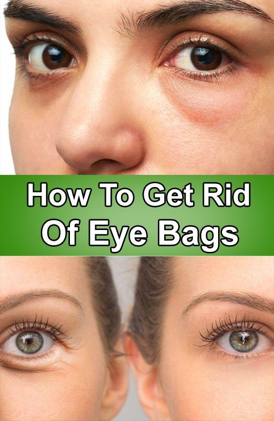 How To Get Rid Of Eye Bags In 2020 Best Skin Care Routine Eye Bags Puffy Bags Under Eyes