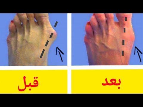 Pin On اعوجاج اصابع القدم