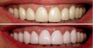 تبييض الأسنان بالليزر بالتفصيل ونصائح بعد التبييض