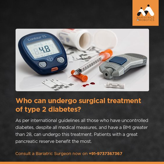 Surgical treatment of Type 2 Diabetes is available