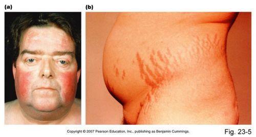 Síndrome de CushingA síndrome de Cushing causa sintomas e complicações sérias como obesidade centrípeta, isto é, ocorre na face e no abdome, mas não nos membros que, ao contrário, são finos e com atrofia da musculatura, o que causa fraqueza muscular. via @minenfermagem