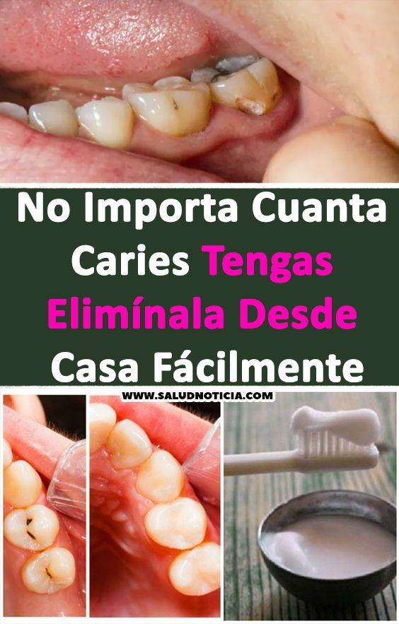 No Importa Cuanta Caries Tengas Elimínala Desde Casa Fácilmente Desde Tengas Remedios Caseros Salud Tooth Caries Healthy Smile Tooth Decay