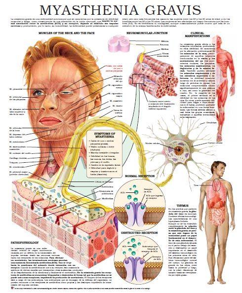 A recent study on #Myasthenia #Gravis by Jeffery T. Guptill MD and Donald B. Sanders MD!