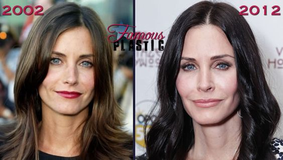 Courtney Cox Before And After Bad Plastic Surgery