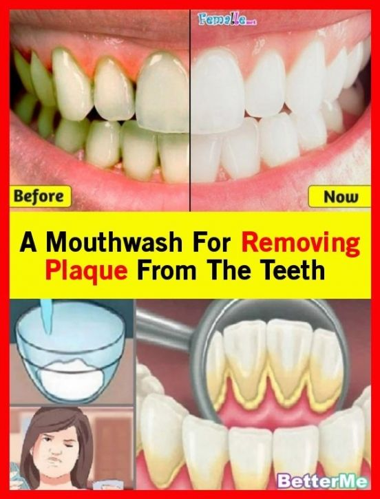 A Mouthwash To Take Off The Teeth Plaque Mouthwash Plaque Teeth How To Remove