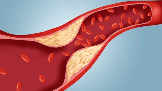 La presenza di colesterolo cattivo nel sangue, incrementa notevolmente le probabilità di sviluppare ictus o cardiopatie. Ecco cosa fare per abbassare i livelli di colesterolo.