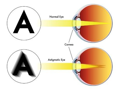#Astigmatism is a common eye condition that's easily corrected with eyeglasses, contact lenses, or elective surgery. Astigmatism occurs in nearly everybody to some degree.
