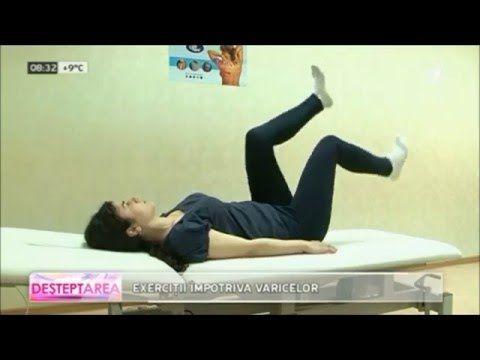 stretching picioare și varicoză