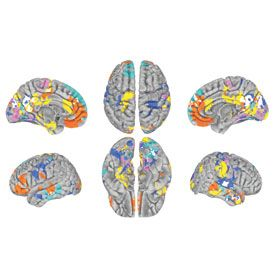 Patterns of brain activity reflect our character ...
