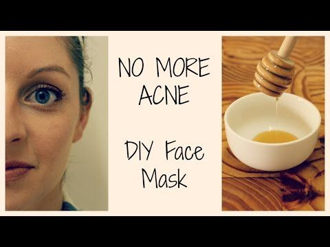 HOW TO GET CLEAR, ACNE FREE SKIN | DIY Face Mask - YouTube
