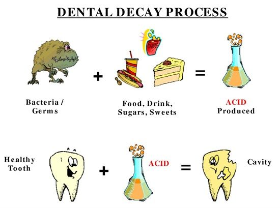 Dentaltown - What causes Tooth Decay? Tooth Decay is the result of an infection with certain types of bacteria that use sugars in food to make acids. Overtime, the acids can make a cavity in the tooth.