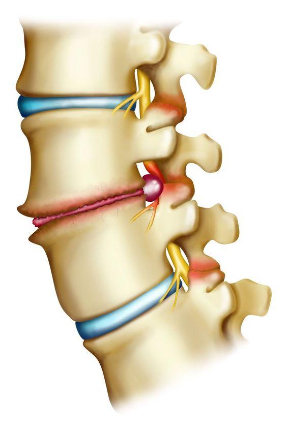 Ways to Abate Symptoms Related to Neuralforaminal Narrowing