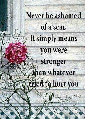 """""""Never be ashamed of a scar. It simply means you were stronger than whatever tried to hurt you"""""""