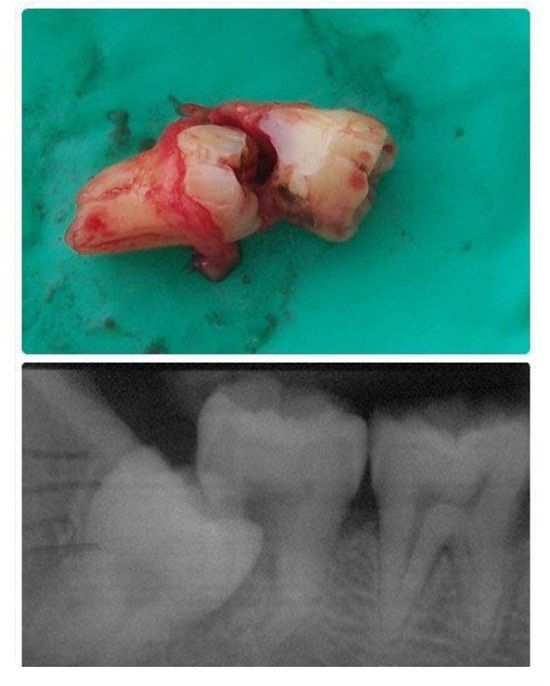 Dentaltown - Why do I have to get my wisdom teeth out if they're not bothering me?: