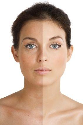 Ways To To Brighten Your Skin Naturally