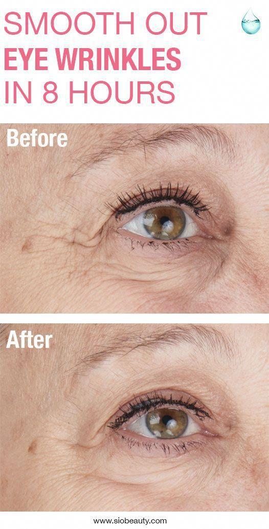 72e904226769756ee0e3c628cd57d33f - How To Get Rid Of Eye Wrinkles And Crow S Feet