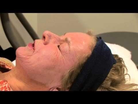 Dr Richard Rahdon: TCA Peel - Plastic Surgery Forum - Blog
