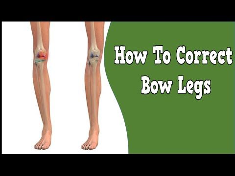 http://bow-legs-correction.good-info.co How To Correct Bow ...