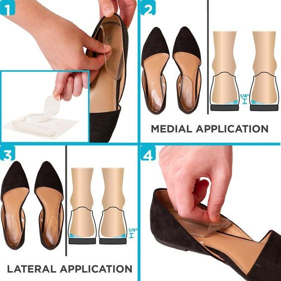 Medial \u0026 Lateral Heel Wedge Inserts for