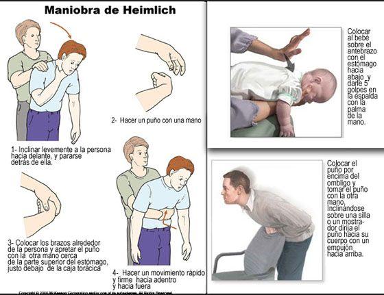 Como Realizar la Maniobra de Heimlich | Guia de Primeros Auxilios