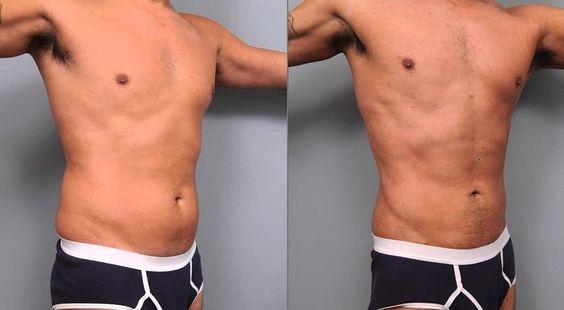 Liposuction men