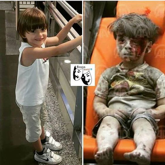 "UNITED NATION, ENGLAND + FRANCE WHO HAVE STARTED ALL OF THIS BY GIVING AWAY THEIR RIGHTS, I WOULD LIKE YOU TO MEET ""OMRAN"" BEFORE AND AFTER - I HOPE YOU ARE PROUD OF YOURSELVES😡"