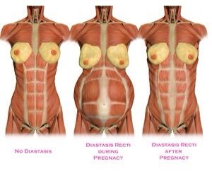 """I often get asked """"Why do I have such a hard time doing a sit-up?"""" There can be numerous reasons for problems efficiently performing a sit up or other related tasks, but one of the most common causes post pregnancy is Diastasis Reci. In the picture above you can see how the Rectus Abdominis muscle:"""