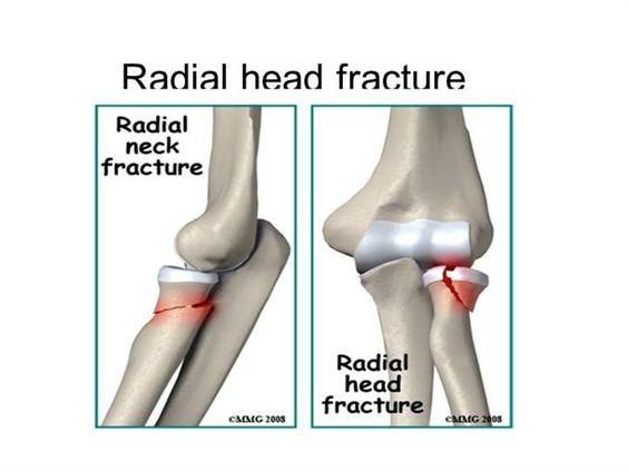 Radial head anatomy