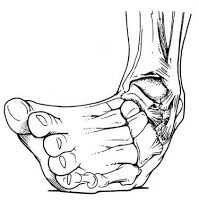charcot marie tooth injuries | Ankle Injuries: More than just an annoyance.: