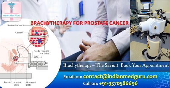 Get Hassle Free & affordable brachytherapy treatment packages with Indian Med Guru Group