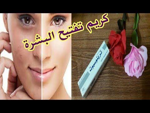 أرخص وأفضل كريم لتفتيح البشرة وإزالة النمش والبقع الداكنة X2f تجربتي الشخصية X2f مضمون 100 لبشرة صافية Youtube Youtube Lipstick Beauty