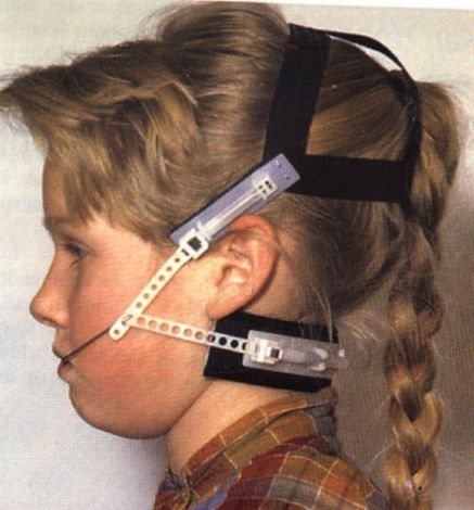 orthodontic headgear | Braces | Pinterest | Orthodontics, Dental ...