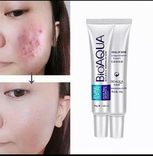 Dm For Order Acne Treatment Cream Acne Spots Skin Care
