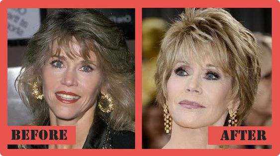 Jane Fonda Plastic Surgery Before And After Jane Fonda Plastic Surgery  #JaneFondaplasticsurgery #JaneFonda #celebritypost