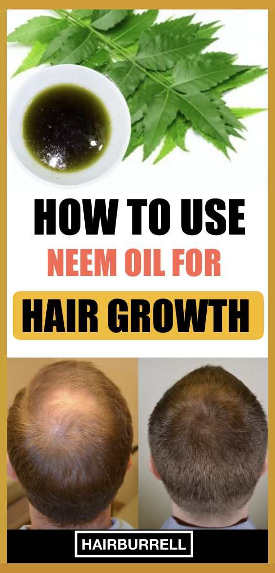 How To Use Neem Oil For Hair Growth Get Thicker And Stronger Hair Neem Oil For Hair Hair Growth Oil Neem