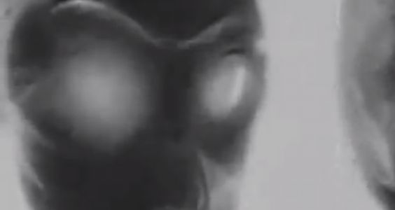 New Area 51 alien autopsy image is 'smoking gun', researcher claims   Alien UFO Sightings