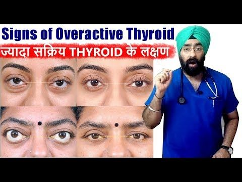 Rx Thyroid 4 Hindi ज य द सक र य थ इर इड