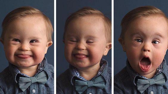 #El bebe con Síndrome de Down que desafía al modelaje - LA NACION (Argentina): LA NACION (Argentina) El bebe con Síndrome de Down que…