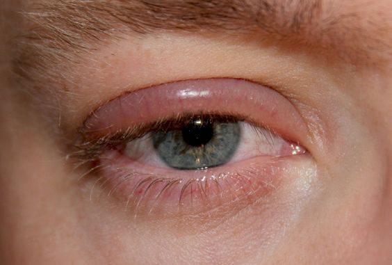 Eyelash Extensions, Blepharitis and You