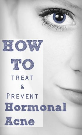 Treating Hormonal Acne