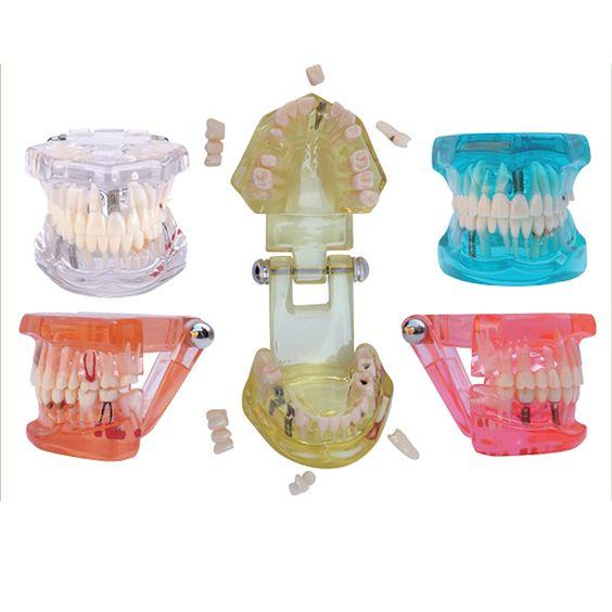 Günstige 1 Stück Dental Implant Krankheit Zähne Modell mit Restaurierung Bridge Tooth Zahnarzt für medizinische Wissenschaft Lehre, Kaufe Qualität Zahnaufhellung direkt vom China-Lieferanten:              Artikelbeschreibung:                    Restaurierung mit Implantat        Packliste: 1 Stück    ,