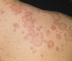 The symptoms of chronic urticaria are caused by the release of histamine and other skin mediator chemicals. In other words, they are caused by an immune response. Potential triggers include: Persistent infections or infestations NSAIDs Food additives However in many cases, there is no known trigger, leading to a diagnosis of 'idiopathic' chronic